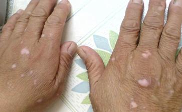 老年人白癜风常见预防方法